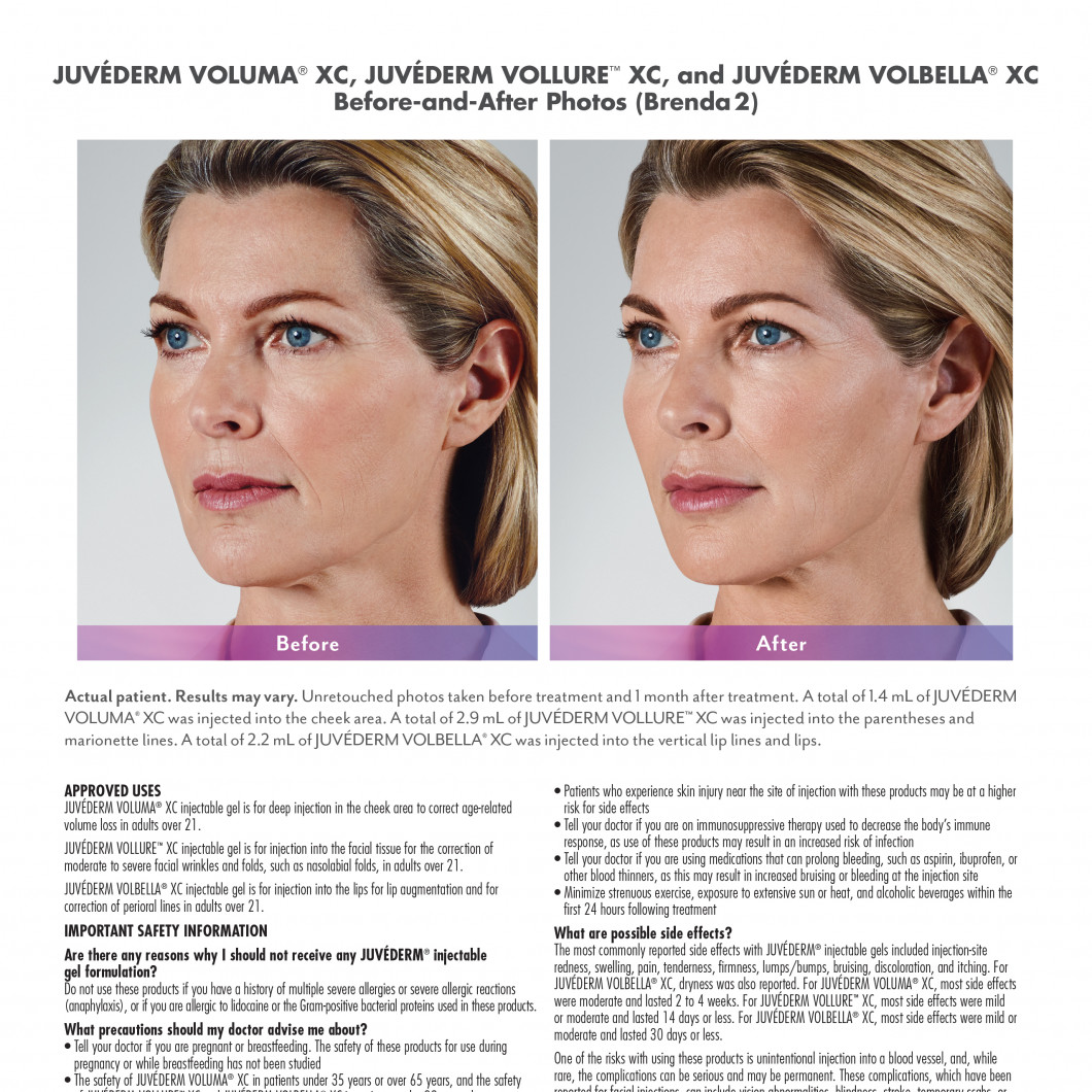 Fillers | Heights Dermatology and Aesthetics
