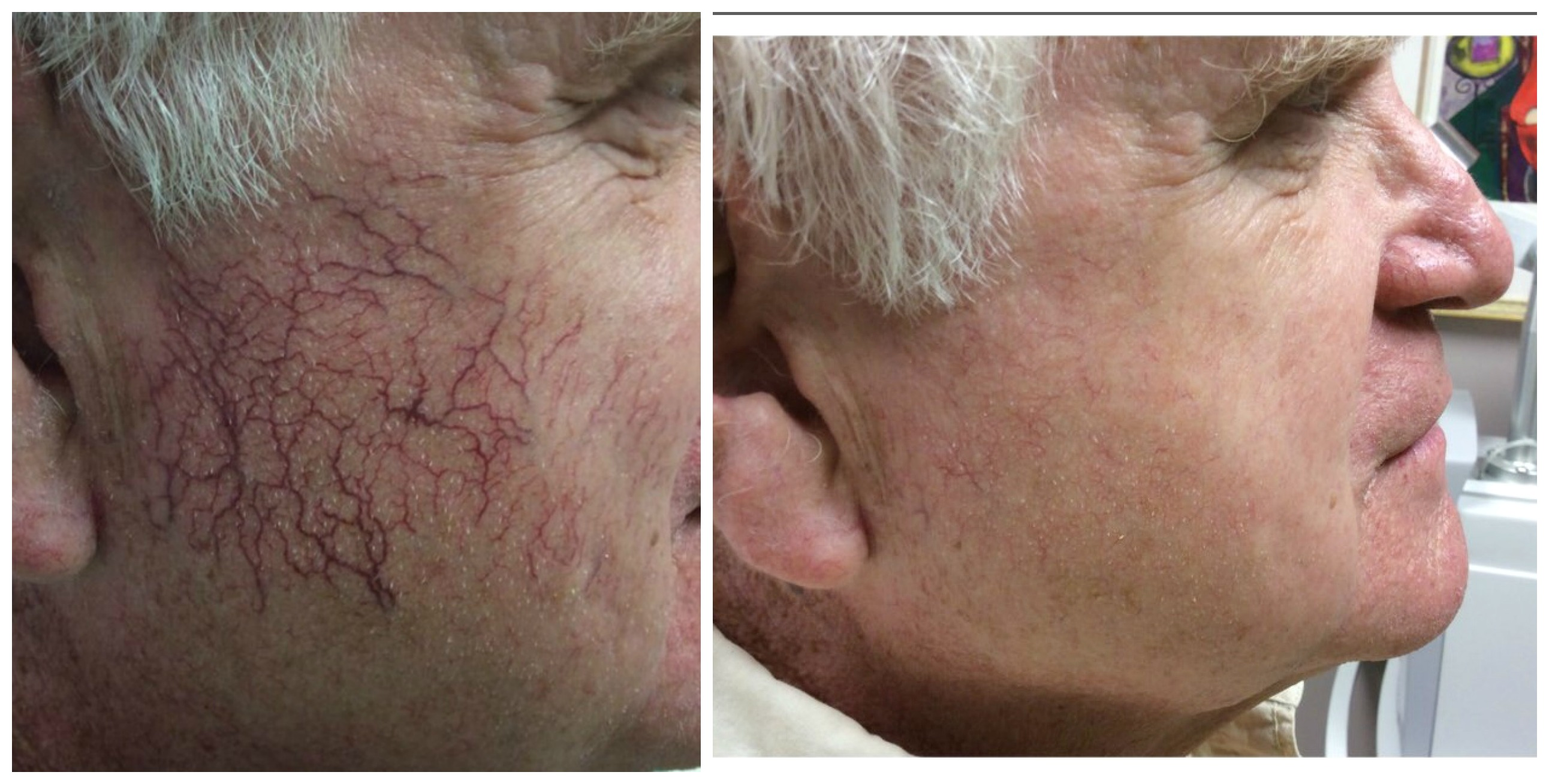 Vascular Laser for Spider Face Veins