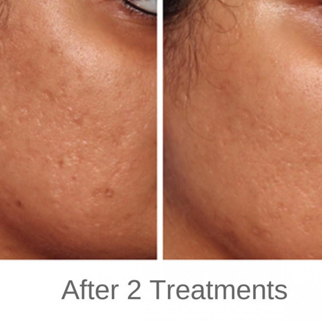 Micro-Needling with PRP | Heights Dermatology and Aesthetics