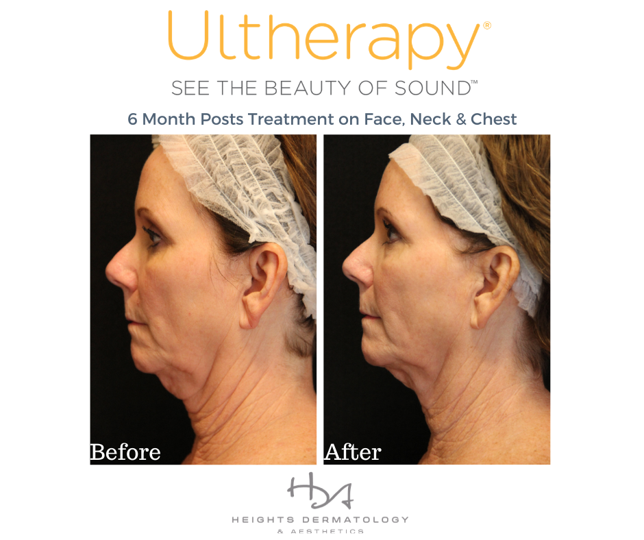 What kind of technology does Ultherapy use?