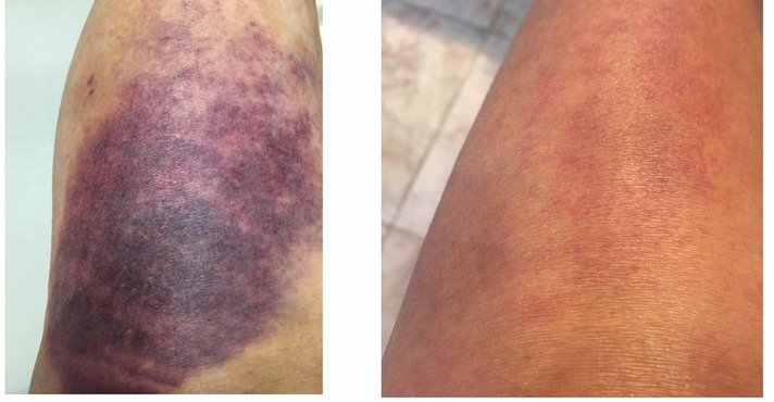 Laser for bruising (after 1 week)