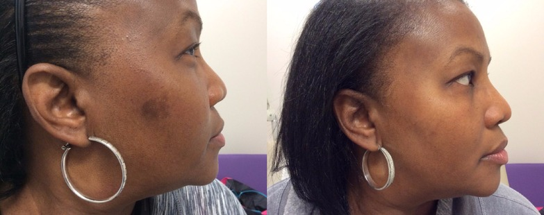 Hyperpigmentation  Regimen for uneven skin pigmentation